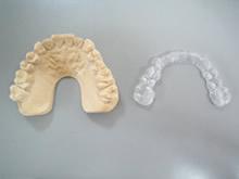 顎関節症用マウスピース